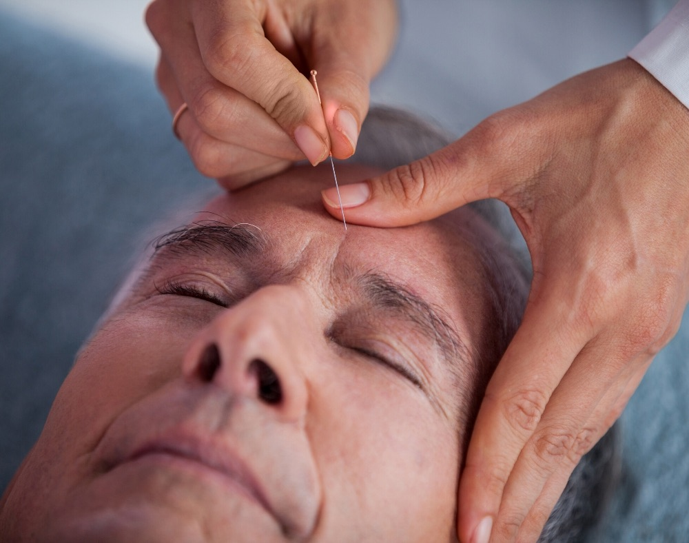 how-acupuncture helps improve memory of persons with dementia