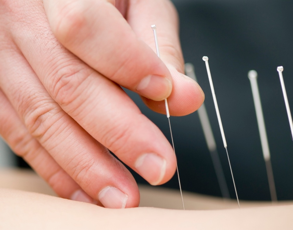 what is acupuncture