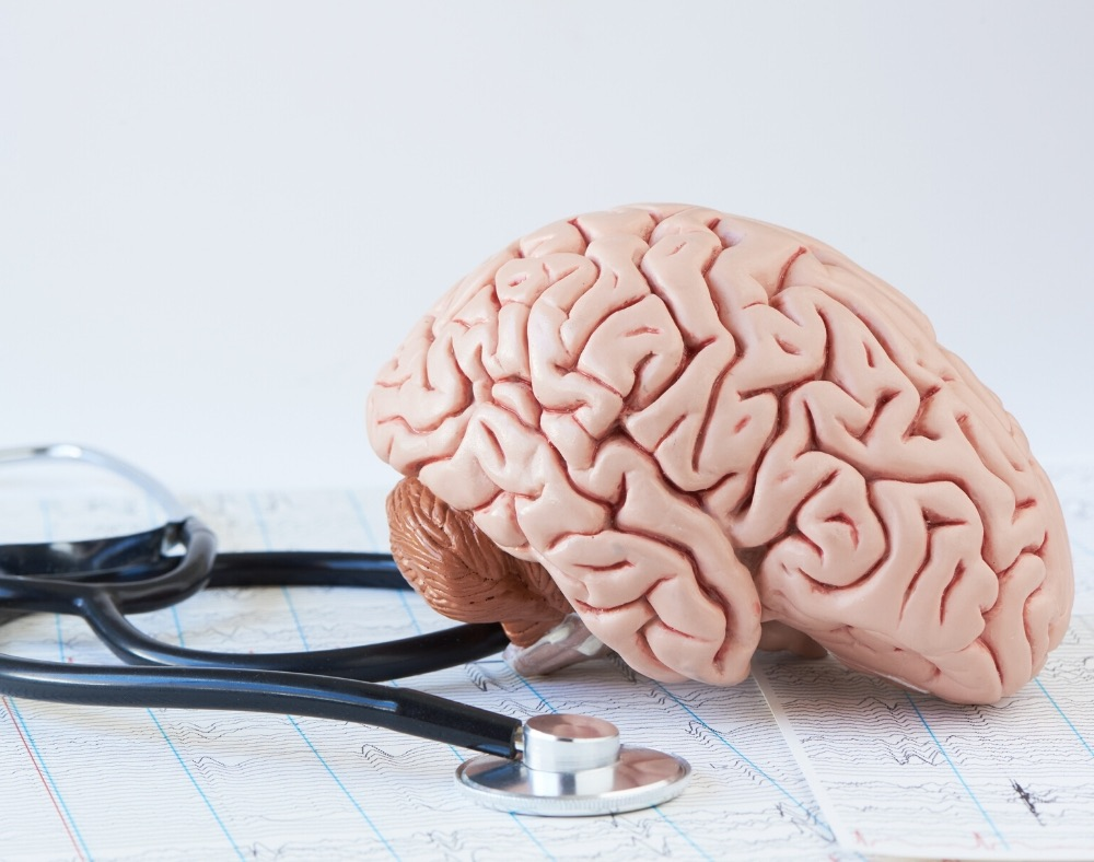 diagnosis and treatment of seizures in persons with dementia