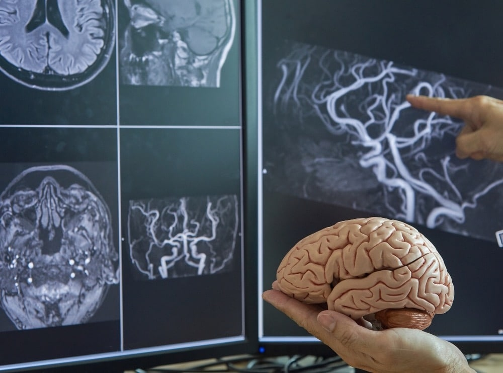 why refer to a neurologist for dementia