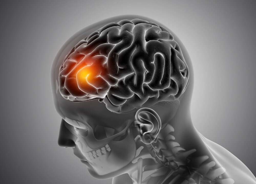 causes of aphasia and dementia