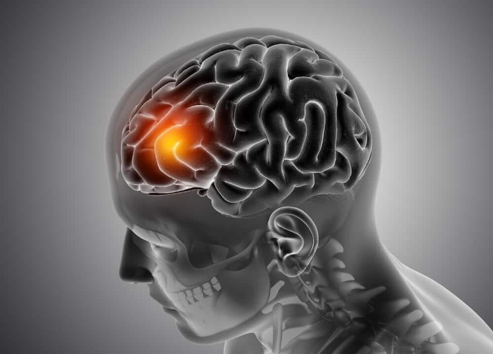 how hypertension affects the brain