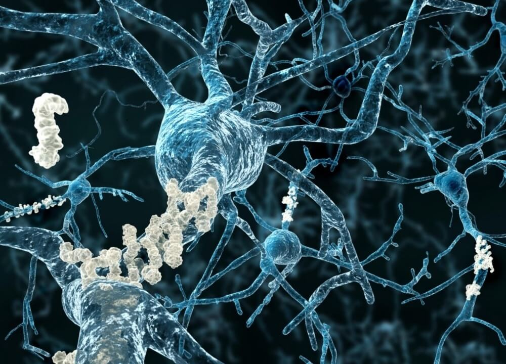 low levels of hdl can contribute to a memory decline