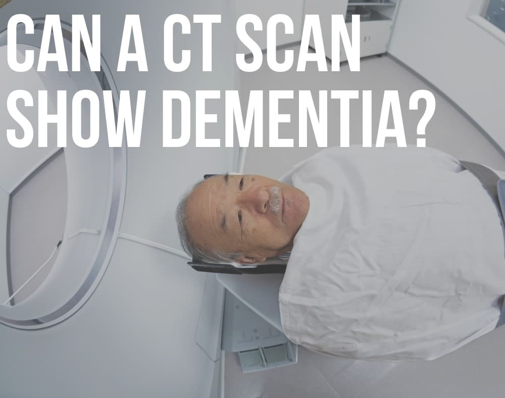 can A CT scan show dementia