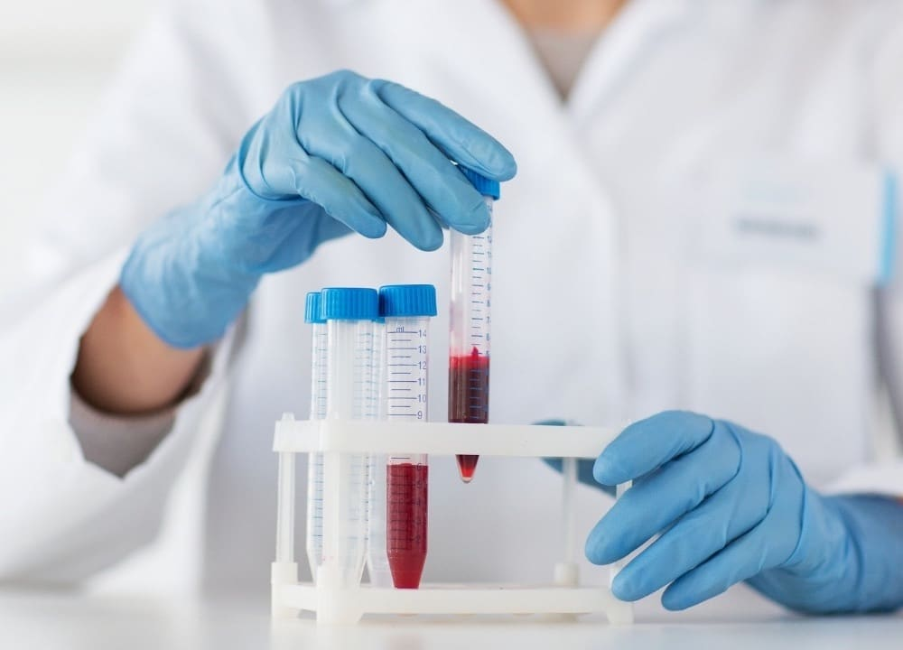 how the blood test works