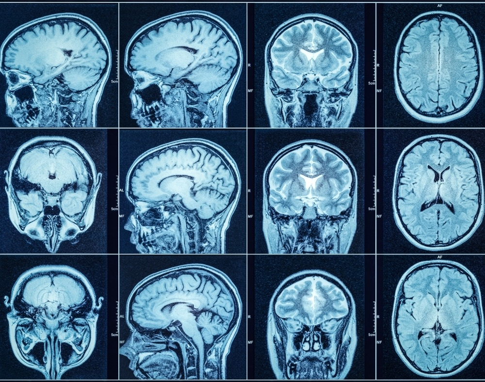 other imaging options that can diagnose dementia